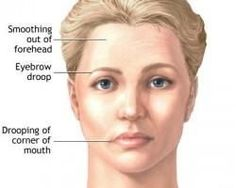 Beat Time Harnessing Ageless Facial Exercises To Tighten Jowls And Brighten Saggy Skin