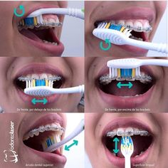 How to clean braces Braces Food, Braces Tips, Dental Braces, Braces Smile, Teeth Braces, Cute Braces Colors, Getting Braces, Invisible Braces, Teeth Whitening Diy