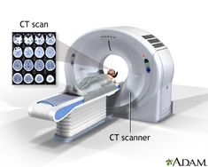 images of computed tomography - Google Search