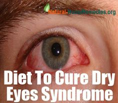 The Proper Diet To Prevent Dry Eyes Syndrome