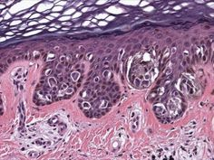 Investigadores vascos patentan un método de diagnóstico precoz del melanoma