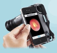 The innovation in Ophthalmology is the integration of ophthalmic technology and the smart phones. One of the biggest manufacturers of equipment for medical diagnostics, Welch Allyn, introduced iExaminer which is device that supports certain models of iPhones for ophthalmic tests. iExaminer is an ophthalmic equipment which incorporates hardware and respective software that enable it to capture, store, send or retrieve eye images through iPhone 4 and iPhone 4S.