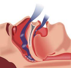 """Το σύνδρομο υπνικής άπνοιας είναι μια διαταραχή της αναπνοής κατά τη διάρκεια του ύπνου. Όσοι υποφέρουν από υπνική άπνοια έχουν συμπτώματα """"τεχνητής αναπνοής"""" ή η εισπνοή τους σταματάει εντελώς για τακτά χρονικά διαστήματα κατά τη διάρκεια του ύπνου. Αυτές οι διακοπές μπορούν να διαρκέσουν έως και 20 δευτερόλεπτα. Διαβάστε αυτό το άρθρο για να μάθετε περισσότερα για την υπνική άπνοια και το πώς να την αντιμετωπίσετε."""