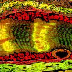 2006 // HM // Mr. Donald Pottle //  Schepens Eye Research Institute // Boston, MA, USA