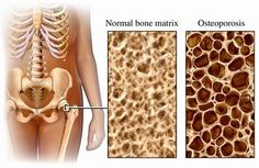 Osteoporosis is caused by poor bone density. A decrease in bone density is caused by a lack of calcium, phosphorus, and other chemicals and minerals required for bone strength. Bones afflicted with osteoporosis are subject to becoming brittle which break easily as well as hinder a patient's ability to stand, walk, or be active for long periods of time. #osteoporosis #bonediseases #medicalook