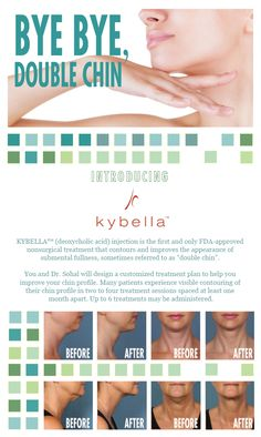 Balle Bliss introduces Kybella for your double chin EDP Cosmetics 252-634-2885 ext 311