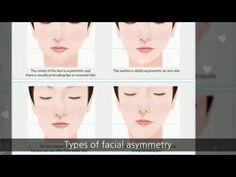 Have a Facial Asymmetry? Fix it at Korean Plastic Surgery