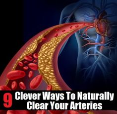 9 Clever Ways To Naturally Clear Arteries