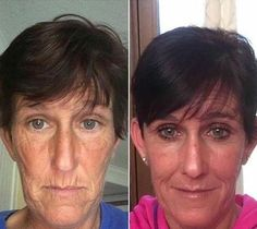 Acupressure Facelift: Now Could Be The Moment To Begin A First-Class Face Gymnastics Exercise Method