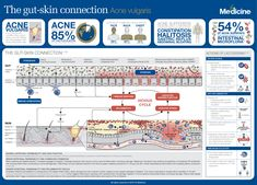 Researchers from as far back as 1930 suspected a link between gut and skin health and this has certainly been a cornerstone of understanding for wholistic medicine practitioners. Gut Health, Health And Wellness, Abdominal Bloating, Happy Minds, Connection, Medicine, Healthy Skin, Infographics, Curriculum