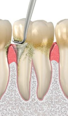 The hygienist uses dental instruments to  scale or remove bacterial plaque that has hardened and cannot be removed with brushing and flossing. If left on the tooth it will cause inflammation of the gums and will eventually lead to loss of bone that supports the teeth