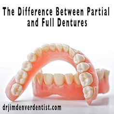 The Difference between Partial and Full Dentures