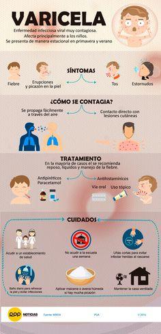 ¿Sabes qué es la enfermedad de la varicela y cómo tratarla? | Trujilloinformado.com