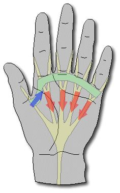 Dupuytren's Contracture Information - good graphics and client-friendly language Hand Therapy, Massage Therapy, Dupuytren's Contracture, Tremors Hand, Hand Surgery, Occupational Therapy Assistant, Hand Injuries, Crps, Health