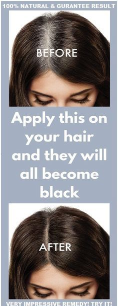 Sadly that more and more people among 30 years old are affected with this problem of graying and white hairs. The factors are