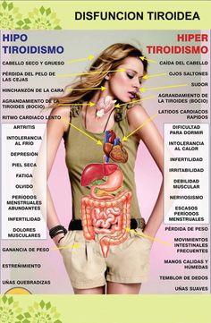 el hipotiroidismo se crea a partir de una mala dieta y estilo de vida, y sólo se corregirá cuando eso cambie #CACAOSALUD