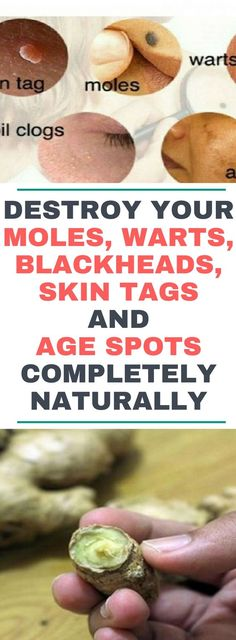 Destroy Your Moles, Warts, Blackheads, Skin Tags And Age Spots Completely Naturally !!! https://bestproductsfor.com/best-products-for-removing-blackheads/