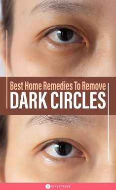 The dark circle is a common problem in men and women. Dark circles can make all face look dull and it also a sign of anti-aging. Maybelline Concealer, Beauty Tips For Face, Natural Beauty Tips, Beauty Advice, Natural Beauty Remedies, Beauty Habits, Diy Eye Cream, Beauty Care, Beauty Skin