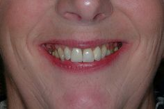 An example of cosmetic dentistry to help this lady with the dark edges to the front tooth crowns, this is the after photo more here s10dental.co.uk/treatments/dental_crowns_sheffield.html     FOR $5 I can save you Money,and give you an exact Quote  on your Dental work free to visit  if I can Help Research Your Dentist & Plans in your area http://fiverr.com/nytoothdr/answer-any-dental-question-on-treatment-options-and-costs-as-well-as
