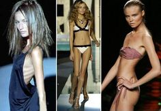 Models promote being this skinny and make people think that its a good thing