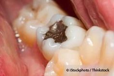For the past years, the European Commission works hard to reduce mercury exposure in humans. http://articles.mercola.com/sites/articles/archive/2012/12/04/ban-amalgam-fillings.aspx