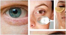 Το γάλα βοηθά στη θρέψη και στην ενυδάτωση του δέρματος του προσώπου για να το διατηρείτε πάντα ανανεωμένο. Εφαρμόστε λίγο γάλα με ύσσωπο γύρω από την περιοχή των ματιών για να μειώσετε τις φλεγμονές και τους μαύρους κύκλους. Οι σακούλες κάτω από τα μάτια κάνουν το πρόσωπό μας να φαίνεται κουρασμένο και τις περισσότερες φορές …