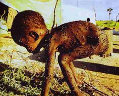 Starving child covered by parasites...    Unacceptable!!!!!!!