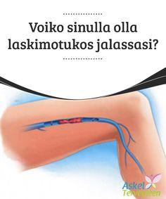 Voiko sinulla olla laskimotukos jalassasi?  Jalkojen #suonikohjut voivat johtaa #verihyytymään eli #laskimotukokseen, joka ei ole mikään vaaraton ongelma.  #Luontaishoidot