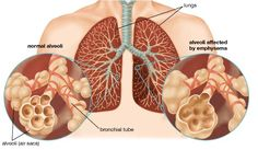 home remedies to treat emphysema