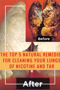 The Top 5 Natural Remedies For Cleaning Your Lungs Of Nicotine And Tar