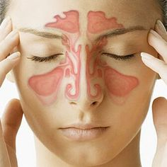 Curing nasal congestion with acupressure points helps you to get rid of sinus congestion naturally. This really helps with stuffy nose in any condition. Strep Remedies, Home Remedies For Sinus, Home Remedy For Headache, Allergy Remedies, Natural Home Remedies, Health Remedies, Allergy Symptoms, Herbal Remedies, Allergies