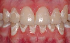 White spot decalcification from poor brushing habits with braces. However, this can happen from improper or poor brushing habits without braces!