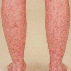 mottled skin   chronic Illness   Livedo reticularis, Skin