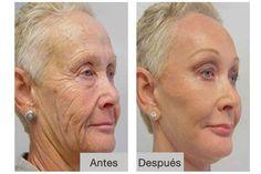 Vovós de 70 anos aparentam 40 outra vez: Você não vai acreditar em suas transformações!
