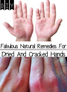 Fabulous Natural Remedies for Dried and Cracked Hands Dryness of skin is commonly happened in the cold season due to the cold and wind ...