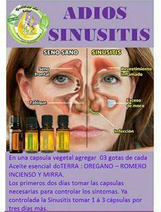 Resultado de imagen para sinusitis niños doterra