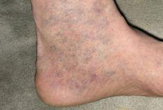 fogyatékosság visszeres a petevezeték varikózus vénái mi ez