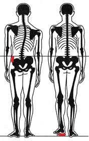 Резултат с изображение за psoas muscle LLD