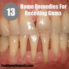 Find Home Remedy - http://www.findhomeremedy.com/home-remedies-for-receding-gums/