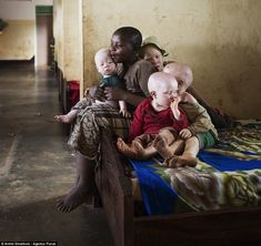 Hiding: Tanzania's albinos live in fear for their lives, as their body parts are sold to witchdoctors and are believed to bring luck. Mbalu John, has four albino children. They all live together the Kabanga school, a safe house for people with albinism Albino Girl, Human Body Parts, Albinism, Witch Doctor, Masked Man, Bedtime Stories, East Africa, Weird Facts, Tanzania