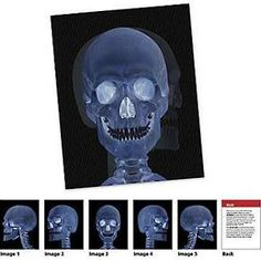 Learning Resources Put science in motion to grow a deeper understanding of the human body. Transform images by tilting the lenticular cards. Features: -New view science - human body card set. -Includes 18 double-sided cards in storage tray plus activity guide. -Includes skeletal x-rays, digestive system, beating heart, joints, organs, muscles and more. -Provides additional vocabulary and content on reverse side. -Grades 1+. -Ages: 6 +