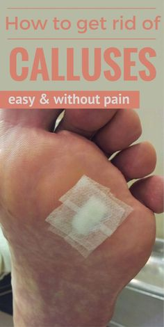 The Key to Successful Get Rid of Warts Whenever you have warts you're probably desperate to remove them. Warts can happen to anybody, but some individuals are more inclined to it than others. Warts On Hands, Warts On Face, Natural Home Remedies, Herbal Remedies, Health Remedies, Foot Remedies, Get Rid Of Warts, Remove Warts, Remove Stains