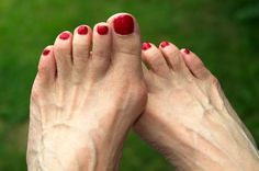 These are important bunion treatment advice from simple bunion treatments to bunion surgery. Learn the best methods to treat your bunion. Get Rid Of Bunions, Bunion Pads, Bunion Surgery, How To Cure Gout, Calf Muscles, Best Running Shoes, Foot Pain, Feet Care, Plastic Surgery
