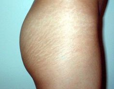 How To Get Rid Of Stretch Marks | SIMPLY SHENEKA