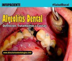 alveolitis-dental
