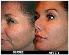 Vos joues sont affaissées et moues ? Elles manquent de fermeté ? Ne paniquez pas, nous vous proposons des remèdes simples et peu coûteux pour atténuer cet effet et avoir un look attrayant.