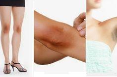 Le guide complet pour blanchir les zones noircies des genoux, coudes, aisselles et du cou.