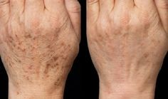 S touto maskou zabudnete na botox: domáca maska, ktorá vymaže všetky vrásky! Brown Spots On Hands, Spots On Legs, Dark Spots, Skin Care Regimen, Skin Care Tips, Beauty Skin, Health And Beauty, Age Spot Removal, Beauty Hacks Eyelashes