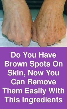 How to Remove Brown Spots on Face Sun Spots On Skin, Black Spots On Face, Brown Spots On Hands, Age Spots On Face, Spots On Legs, Dark Spots, Sunspots On Face, Spots On Forehead, Baking Soda Shampoo