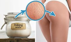 Are your frustrated with lumpy cellulite. Take it off with your cellulite removal Baking Soda And Lemon, Baking Soda Uses, Healthy Tips, Healthy Skin, Healthy Bodies, Stretch Mark Remedies, Ketogenic Diet Meal Plan, Tips Belleza, Stretch Marks